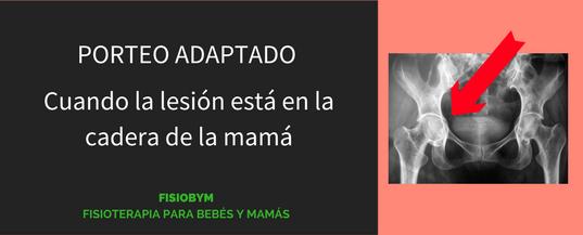 Porteo Adaptado: cuando la lesión está en la cadera de la mamá