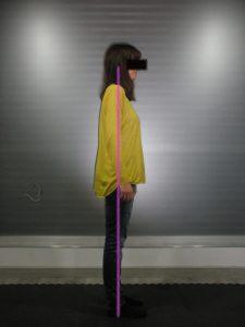 Porteo adaptado pelvis otto perfil derecho